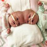 Kafadan yapışık ikizler ameliyatla birbirinden ayrıldı
