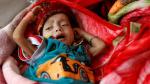 Yemen'de insanlık dramı: 10 dakikada bir çocuk yaşamını yitiriyor