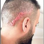 Saç ektirmek istedi, kafasında yara izi oluştu