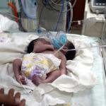 İlk kez oluyor! Bir karaciğeri paylaşan siyam ikizleri dünyaya geldi