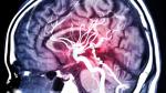 Epilepsi nöbetlerini önceden tahmin eden bir yapay zekâ geliştirildi