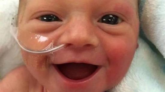 Yüzbinlerce beğeni alan prematüre bebek sosyal medyada fenomen oldu
