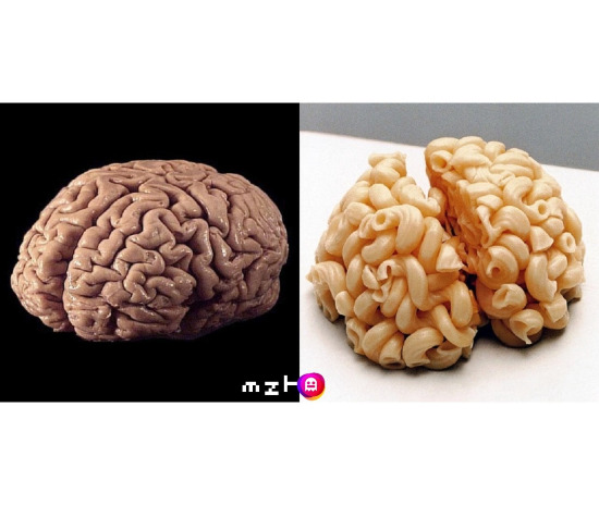 Normal insan beyni / Öğrenci evinde yaşayan insan beyni