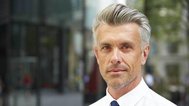 Beyazlamış saçlar tarih mi oluyor?