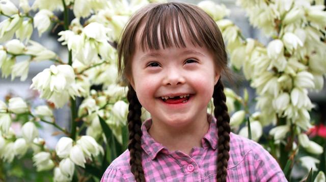 Yalnızca '1' genetik farklılık: Down sendromu